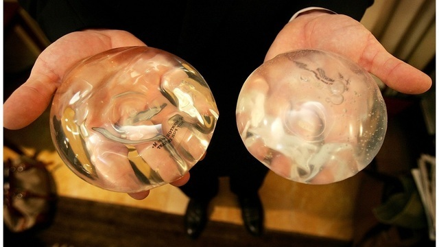 FDA alerts more doctors of rare cancer with breast implants